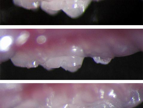 Японским биологам удалось вырастить новый зуб.