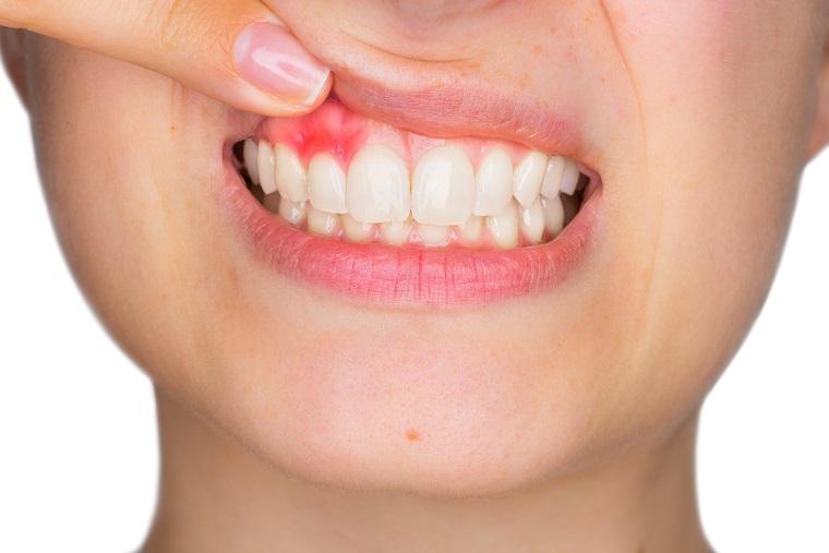 Почему кровоточат десны при чистке зубов